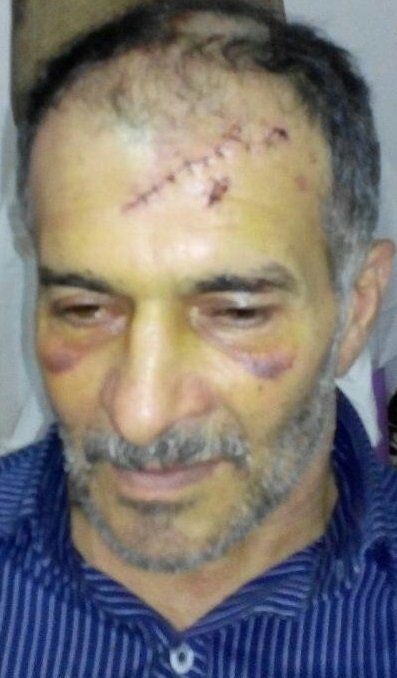 حمله پلنگ به مرد آملی + تصویر