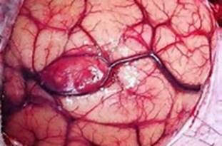 مشکلترین نوع جراحی تومورمغز دنیا در بیمارستان ولیعصر(عج) قائمشهر انجام شد