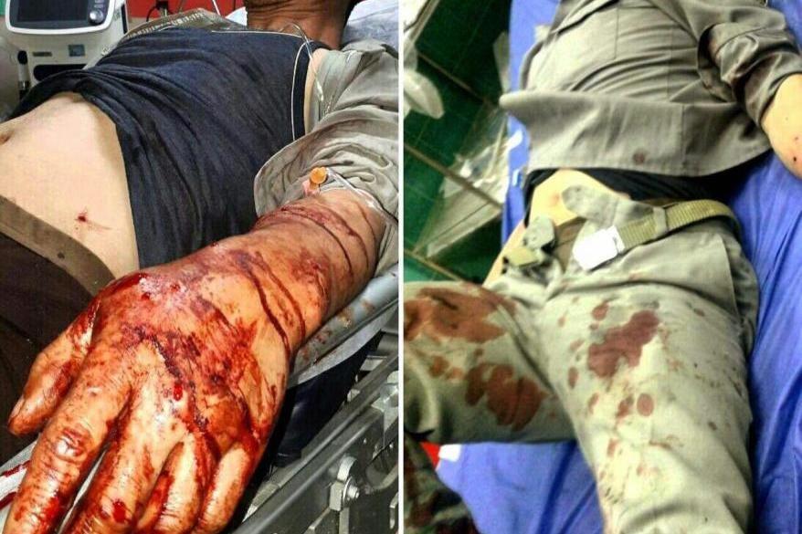 ۲ محیطبان بابلی براثر اصابت گلوله شکارچیان زخمی شدند