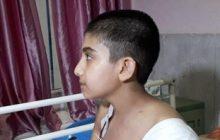 پیوند موفقیتآمیز دست قطع شده در بیمارستان امام خمینی ساری