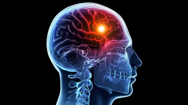 آیا درمانی برای سکته مغزی وجود دارد؟