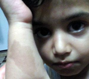 ماه گرفتگی شبیه به نقشه ایران روی دست کودک مازارستاقی+عکس