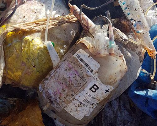 تایید تخلیط زبالههای عفونی مطبها با زبالههای عادی در مازندان